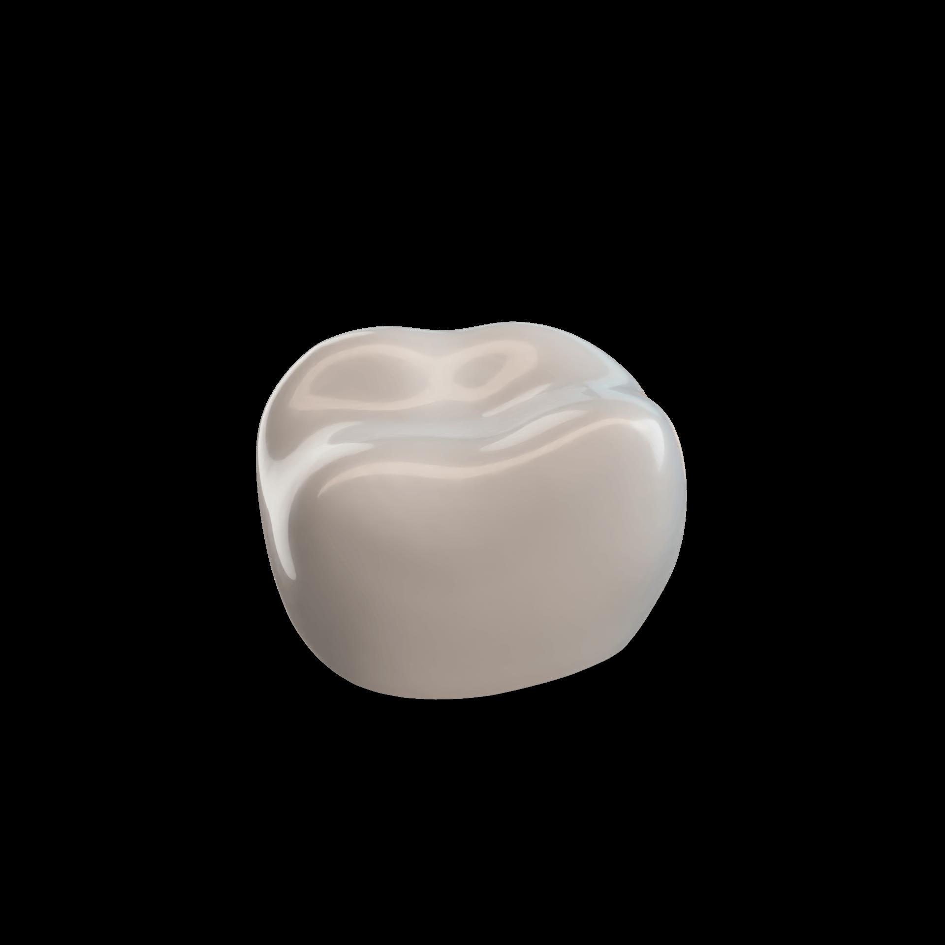 Second Molar URE (55)