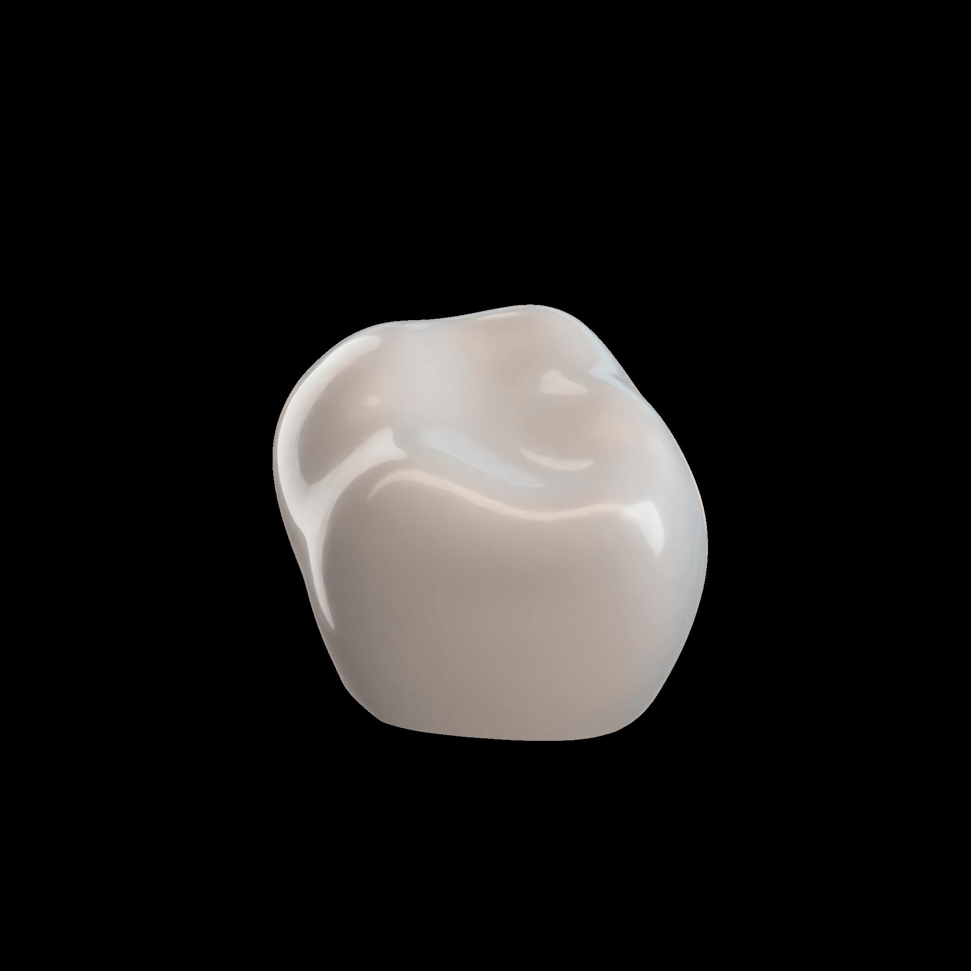 Second Molar LRE (85)